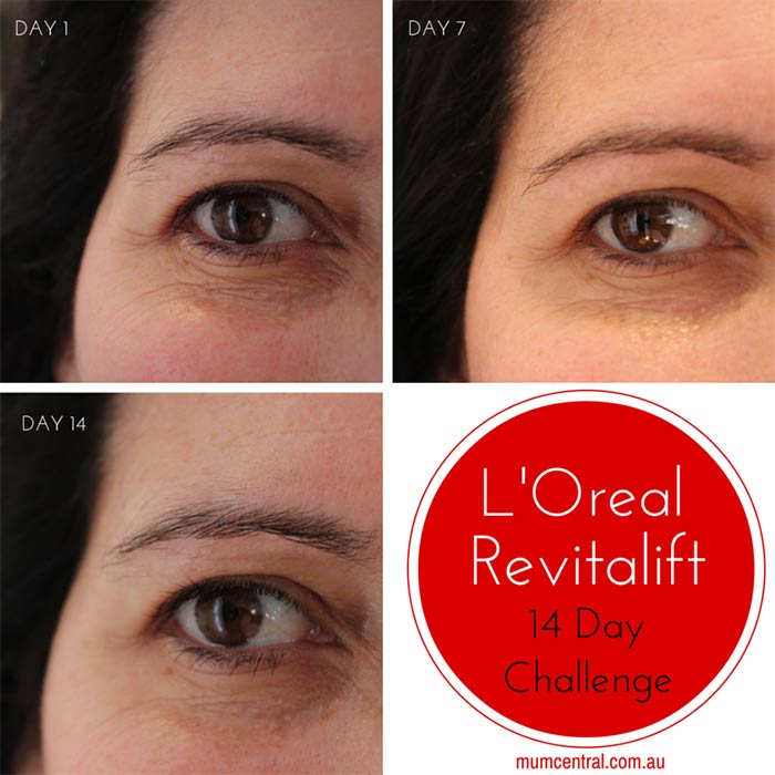 L'Oreal-Revitalift-14-Day-Challenge