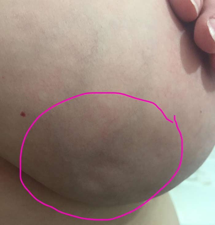 Breast-Cancer-Lump