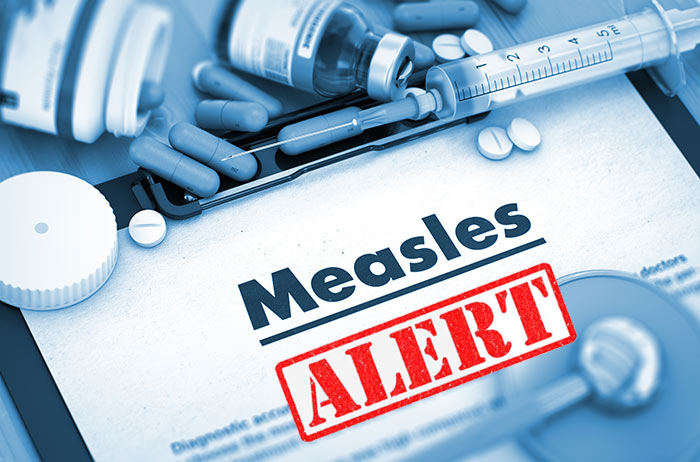 adelaide-measles-warning