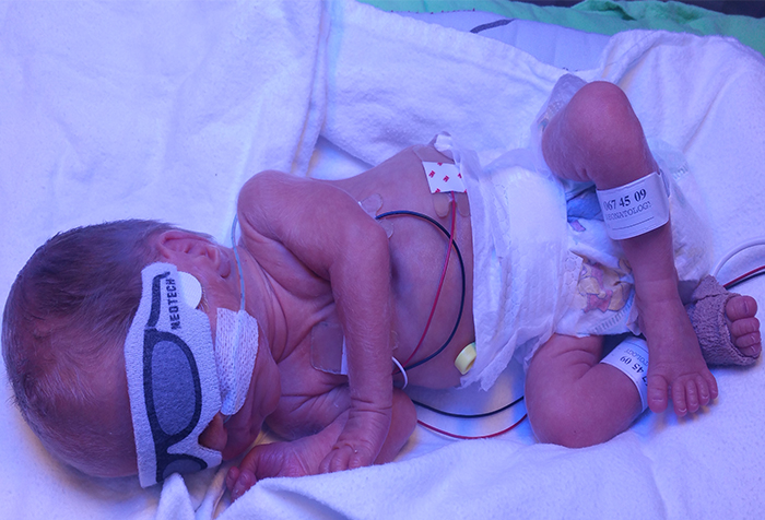 premature babies need our help