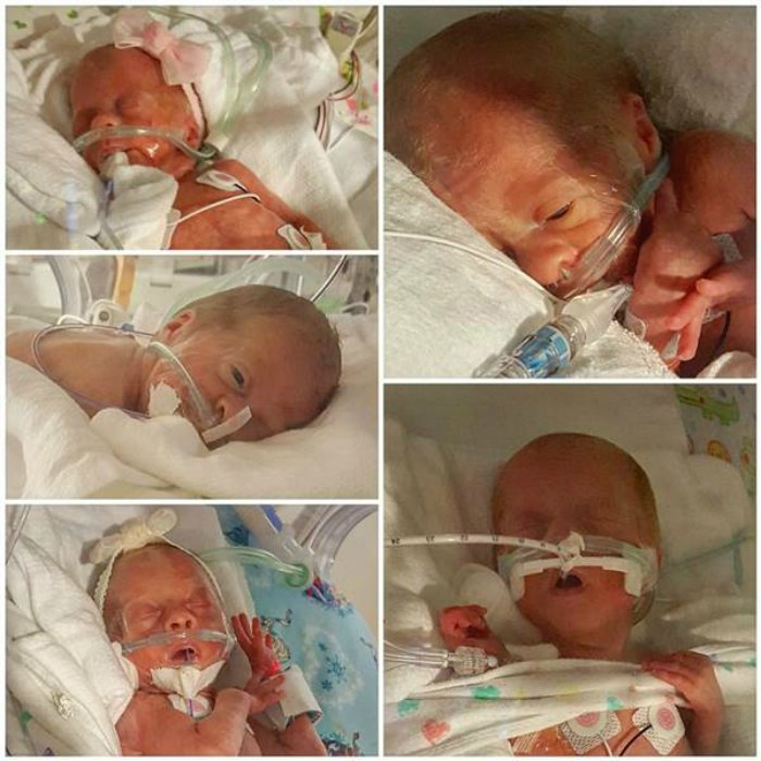 Driskell quintuplets born premature at 28 weeks