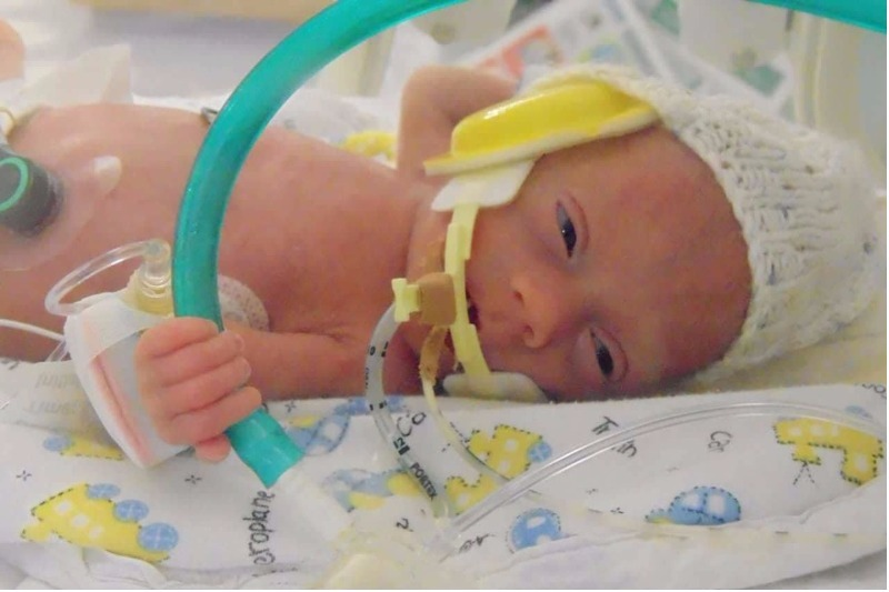 Little miracle baby Austin Buttle born at 23 weeks