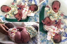 Surprised Mum Naturally Delivers Conjoined Twins