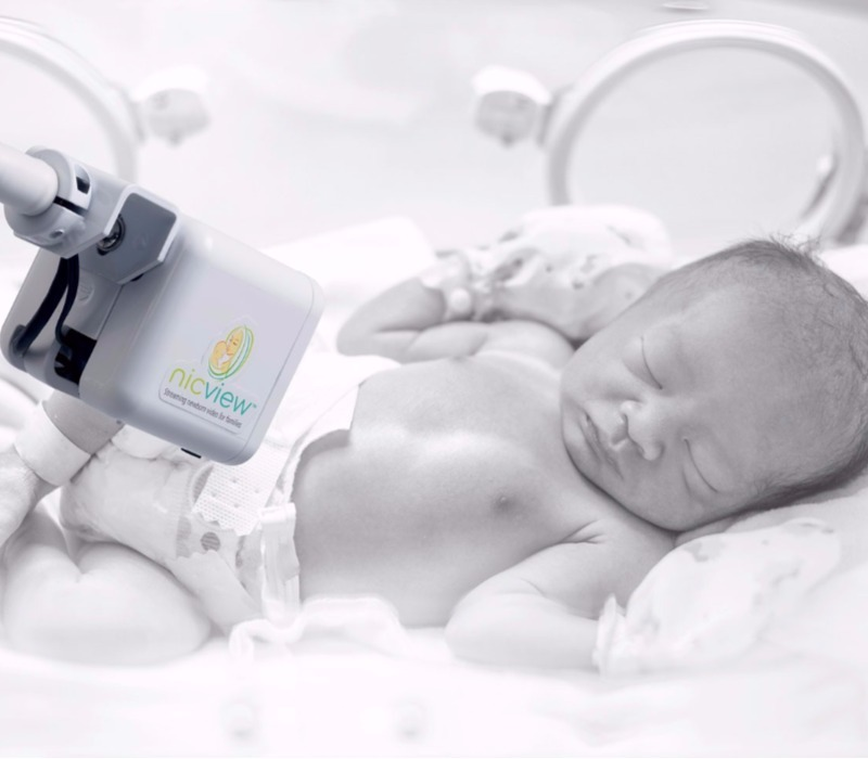 Nicview for newborns in NICU