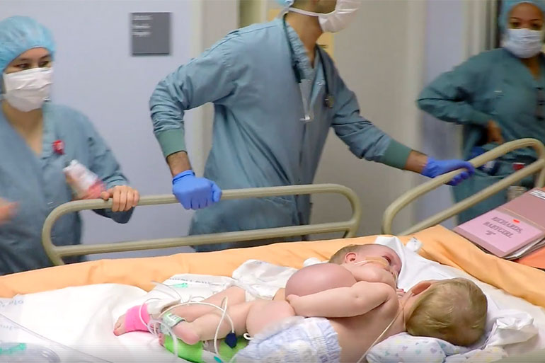 conjoined twins Anna Grace Richards and Hope Elizabeth Richards go into surgery