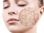 Woman with dry winter skin   dermal Therapy