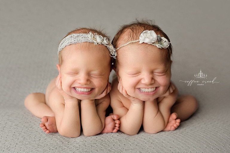 twin babies with teeth © Coffee Creek Studio by Amy Haehl