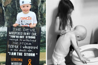 Beckett Burges childhood cancer, Leukaemia
