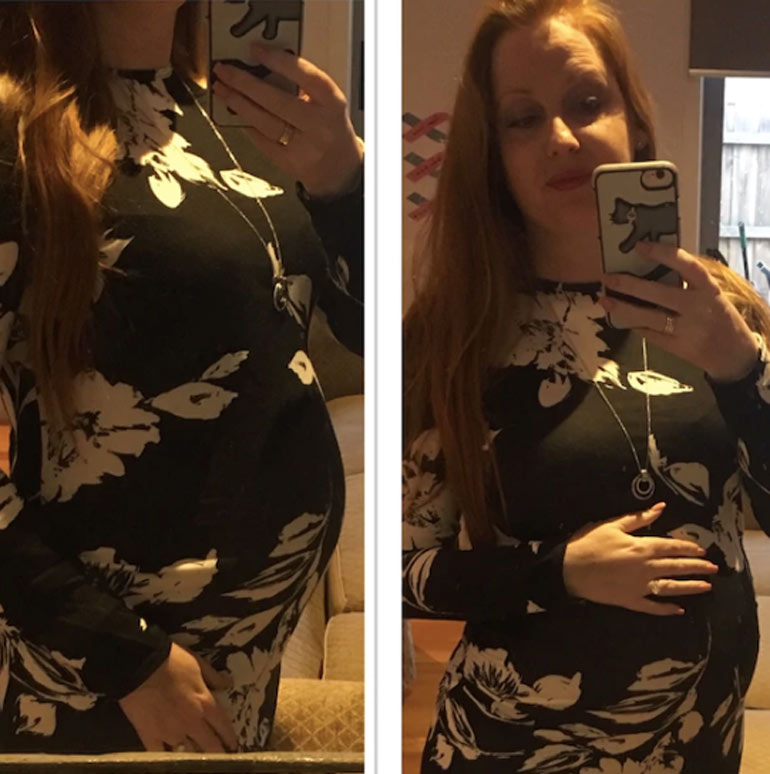 Pregnant Samantha Rowe - multiple miscarriage and stillbirth