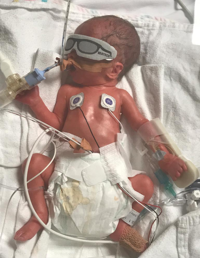 Baby Miles - premature birth story